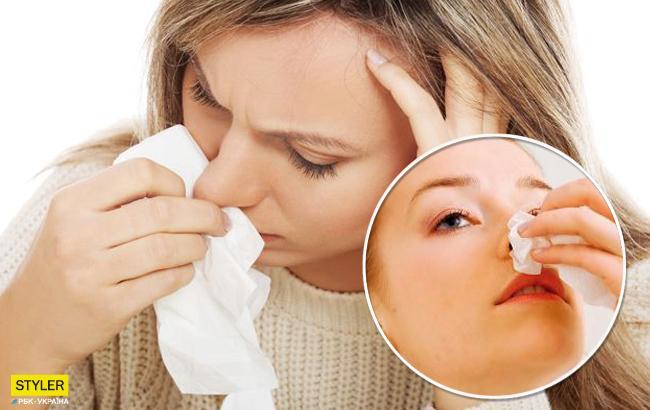 Носовые кровотечения: врач рассказала, как оказать первую помощь