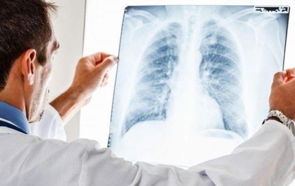 Украина попала в топ-5 антирейтинга по туберкулезу