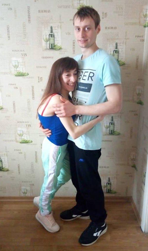Стала выше на 9 сантиметров: благодаря читателям «ФАКТОВ» девушке ростом 137 см сделали долгожданную операцию (фото)