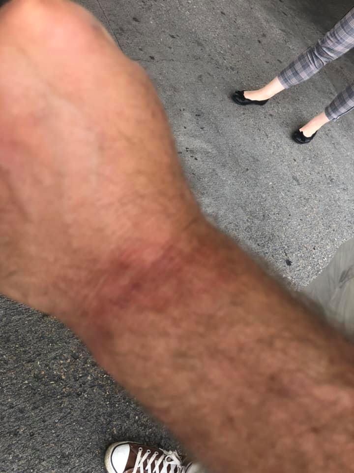 Участники «Бессмертного полка» в Лиссабоне напали на украинцев: фото с места инцидента